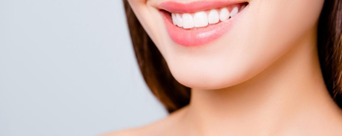 beautiful smile - dental crowns